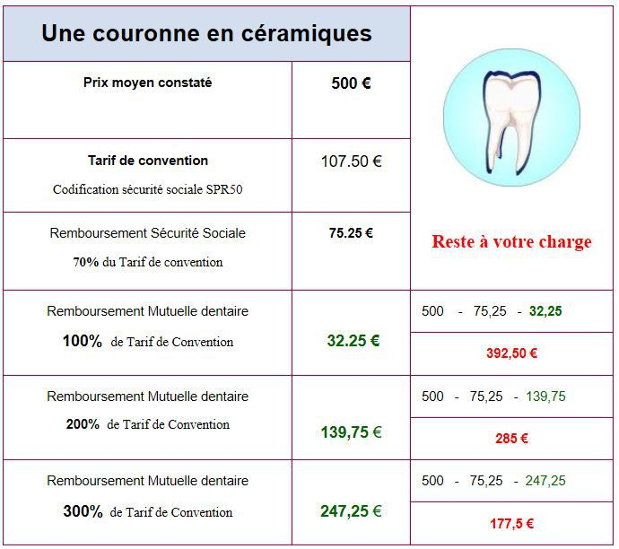 MUTUELLE-COURONNE-DENTAIRE